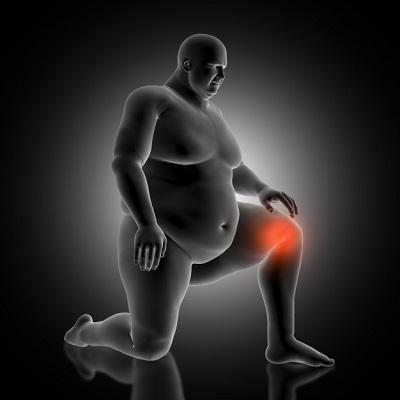 obesite articulation